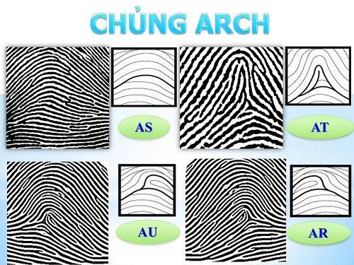 Hình dáng của dấu vân tay chủng Arch